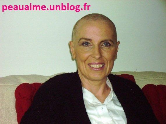 hoprase384888679jpeg - Perte De Cheveux Aprs Coloration