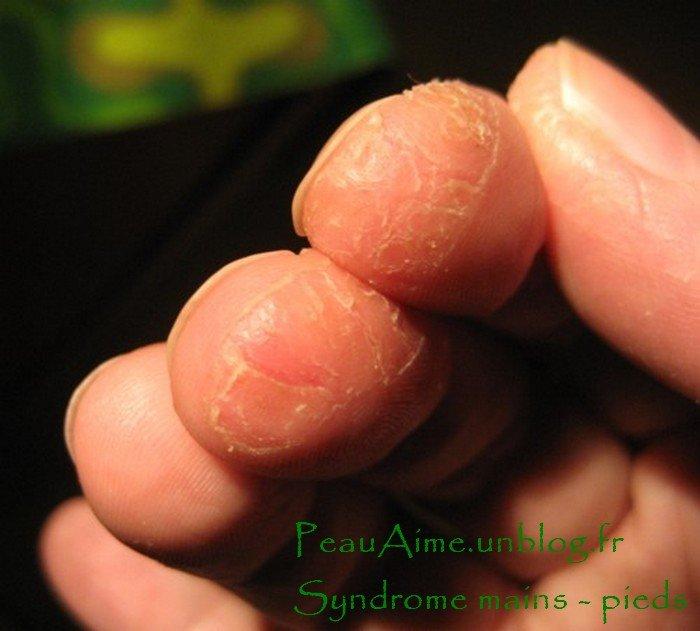 Socio-esthétique : effets secondaires des chimios * syndrome mains-pieds  dans 9 - PHOTOS : syndrome-M-P