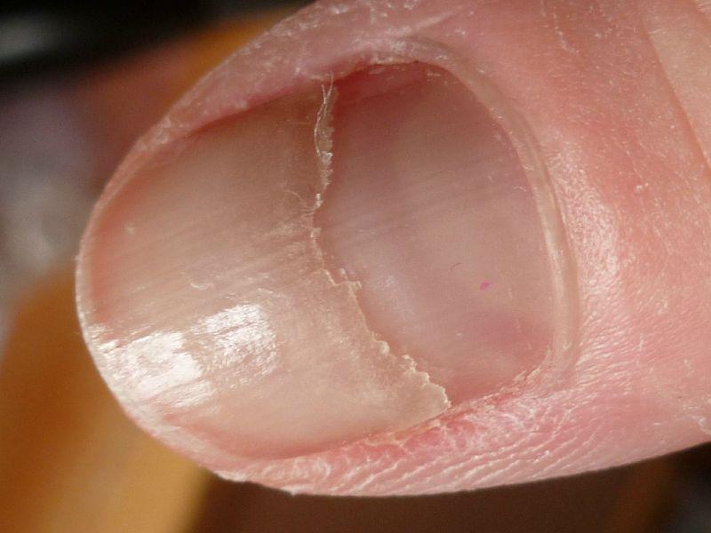 Les rappels sur les vitamines komplivit pour les cheveux et les ongles