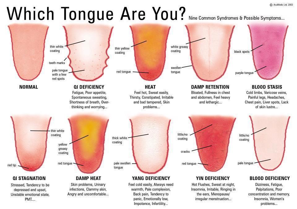 symptomes-langue